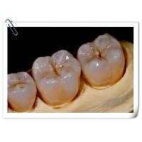 UPCERA Zir Solid Zirconia Dental Crown Tooth Cap For Dental Lab Strong Hardness
