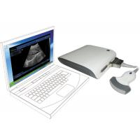 Buy cheap Computer base ultrasound scanner ultrasound machine ultrasound scanner box with 3D image black and white from wholesalers
