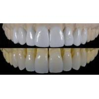 Buy cheap Diagnostic Wax Up Dental Cosmetic For Dental Makeover With No Adverse Reactions from wholesalers