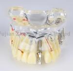 Buy cheap dental caries dental bridge dental teaching communication oral implant nail demonstration model from wholesalers