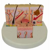 Buy cheap Anatomical Model - AB108 Skin Model, Eczema Skin Model, Medical Model, Human Organ Model, Pathologic from wholesalers