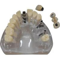 Buy cheap Dental Implant Crown,Dental Restoration Implant Crown from wholesalers