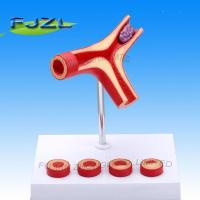Buy cheap Arteriosclerosis Model with Thrombus product