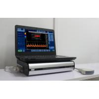 Buy cheap Small and light Portable Color Doppler Ultrasound Box connectingwith computer's USB laser/inkjet printers from wholesalers