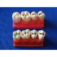 Buy cheap Dental Four times the pit and fissure model product