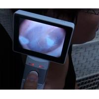Buy cheap Lcd Monitor Digital Video Otoscope Ophthalmoscope For Clinical Inspection Of Human Body from wholesalers