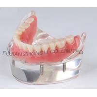 Buy cheap Dental 4 Implants Locator Lower Arch Model product