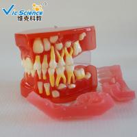 Buy cheap Advance PVC Plastic Child Caries Teeth Model Dental Life Size Eco - Friendly from wholesalers