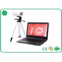 Buy cheap Portable Health Medical Equipment , Digital Electronic Colposcope Equipment from wholesalers