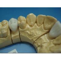 Buy cheap Dental E.max Crown product