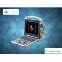 Buy cheap Medical Device Full Digital Color Doppler Ultrasound Scanner (YJ-U60) from wholesalers