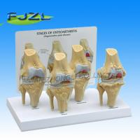 Buy cheap 4-Stage Osteo-Arthritic Knee Anatomical Model Anatomical Model product
