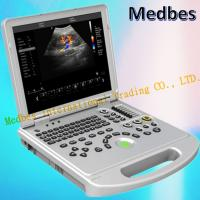 Buy cheap Ce Hospital Equipment Medical Diagnostic Ultrasounic Machine Digital Laptop Ultrasound from wholesalers