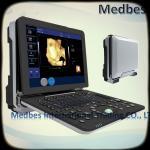 Buy cheap Hospital equipment Fetal doppler Ultrasound Scanner Ultrasound Machine from wholesalers