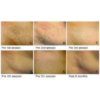 Laser Hair Removal Soprano Xl Tattoo Removal Does It Work