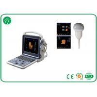 Buy cheap Handheld 4D Color Doppler Ultrasound Scanner With ITouch 2 USB Ports from wholesalers