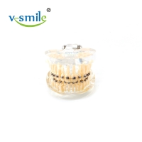 Buy cheap Oral Orthodontics Stainless Steel Self Ligating Brackets 0.022'' 0.018'' from wholesalers