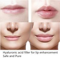 Buy cheap New Sexy Fuller  Lips Injection of Hyaluronic Acid Filler Gel 2ml of Deep Kind from wholesalers