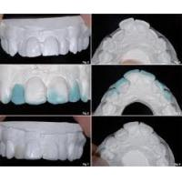 Buy cheap Accurate Diagnostic Wax Up With White Wax of Dental Laboratory For Lifelike Smile from wholesalers