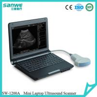 Buy cheap SW-1200A Black  Laptop Ultrasound Scanner with one 3.5 Mhz Convex Probe CE Marked/Notebook Type Ultrasound Scanner from Wholesalers