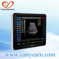 Buy cheap ipad/tablet ultrasound scanner based on Windows 8 from wholesalers