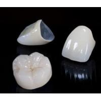 Buy cheap Beautiful Dental Crown Lab PFM Bridge And Caps For Teeth No Side Effect from wholesalers