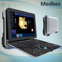 Buy cheap 4D Realtime Musculoskeletal Ultrasound Systems fetak doppler ultrasound Ultrasound Diagnosis System from wholesalers