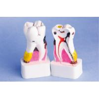 Buy cheap Enlarged Pathological Human Teeth Model / CE / ISO / CIQ anatomical tooth model from wholesalers