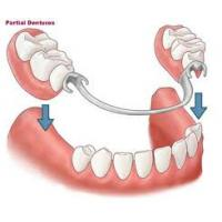 Buy cheap Removable Partial Dentures With Superior Restoration Effect For Partial Denture Case from wholesalers