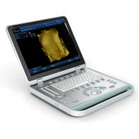Buy cheap SS-9 PC based  Laptop portable BW ultrasound scanner for pregnancy, ob/gyn, urology, cardiac from wholesalers