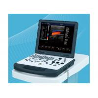 Buy cheap Laptop Portable Ultrasound Equipment , Ultrasound Imaging Machine With 3D Image from wholesalers