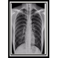 Buy cheap High Sharpness Disposable Medical Consumables , Clear Images Fuji Medical X Ray Film from wholesalers