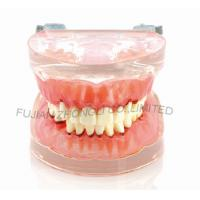 Buy cheap Dental Transparent gingivitis model pathology oral model dental calculus with metal jaw frame new product