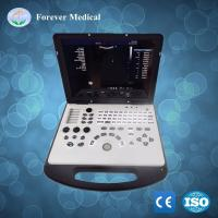 Buy cheap Ultrasound System 3D Portable Color Doppler Ultrasound Machine (YJ-U80PLUS) from wholesalers