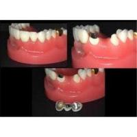 Buy cheap High Strength Temporary CAD / CAM Zirconia Crowns And Bridges With PFM For Teeth from wholesalers