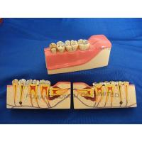 Buy cheap DENTAL MOLAR CROSS SECTION STUDY MODEL product
