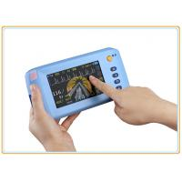 Palm Multi Parameter Patient Monitor 5 Inch Bluetooth Touch Screen