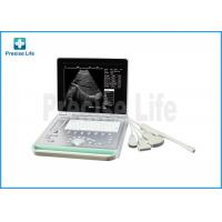 Buy cheap Ultrasonic scanner black and white image Laptop Ultrasound Medical Equipment from wholesalers