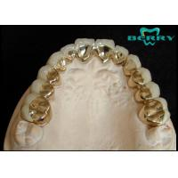 Buy cheap Pure Titanium PFM In Dentistry Metal and Safe No Any Poisonous Side Effect from wholesalers