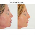 Buy cheap Cheaper price cross-linked liquid gel injectable facial 1ml 2ml dermal filler from wholesalers