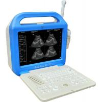Buy cheap ShengPu hospital medical equipment 600B ultrasound scanner with kinds of usage probes from wholesalers