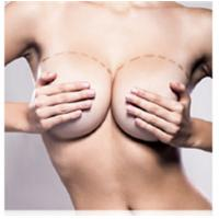 Buy cheap Hot sales Hyaluronic acid filler for breast augmentation from wholesalers