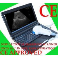 Buy cheap Full Digital Laptop Ultrasound Scanner (RUS-9000F) from wholesalers