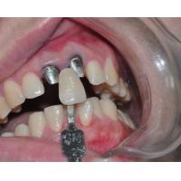 Buy cheap Dental PFM Crown White Gold Dental Post and Core in Dentistry from wholesalers
