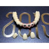 Buy cheap Removable Resin Based Composite Crown For Dental Aesthetics Restoration from wholesalers