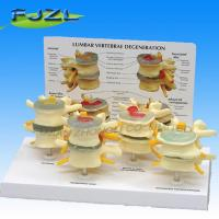 Buy cheap Model of pathological 4-stage vertebral(Disk Degeneration 4 Stages) product