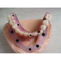 Buy cheap Hybrid Implant Denture from wholesalers