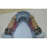 Buy cheap COCR Partial Denture from wholesalers