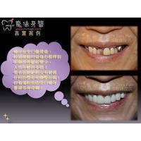Buy cheap Dental Implant Center from wholesalers