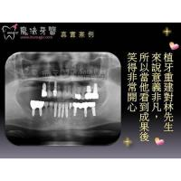 Buy cheap Pain Free Dental from wholesalers